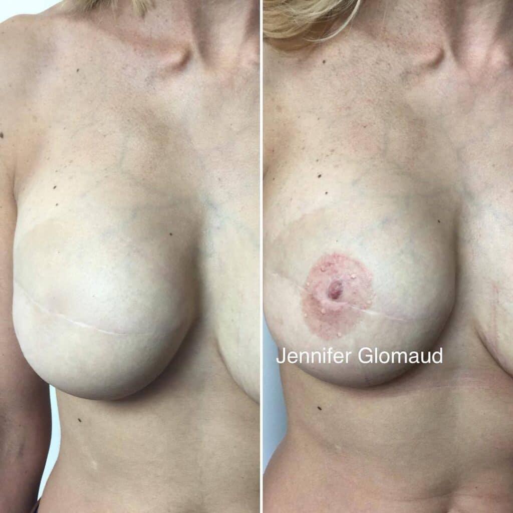 aérole mammaire