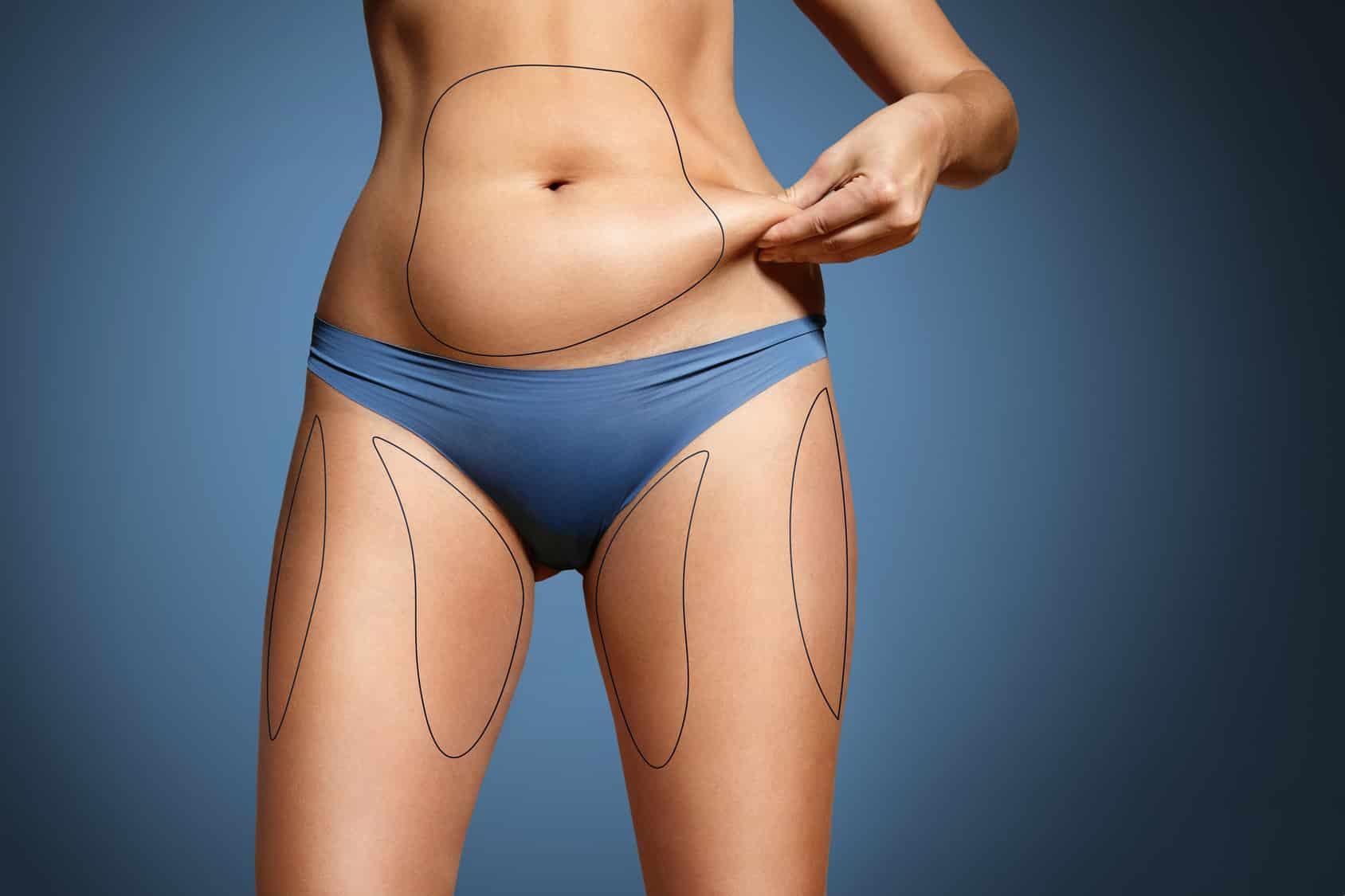 chirurgie esthétique la liposuccion